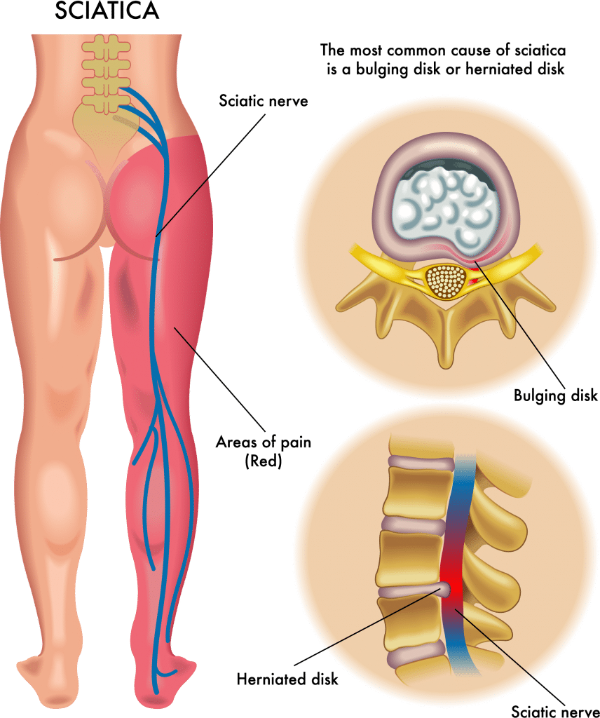 Say Goodbye To Sciatic Nerve Pain With These Yoga Poses